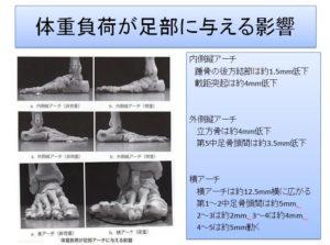 体重負荷が足部に与える影響