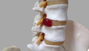 腰椎椎間板ヘルニアで注意すべき症状【運動麻痺と膀胱直腸障害】