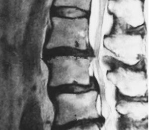 腰椎椎間板ヘルニアとは【症状について】