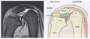 膝蓋下脂肪体の変形