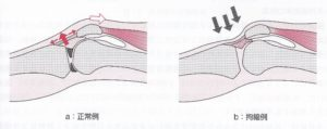 膝蓋下脂肪体の拘縮