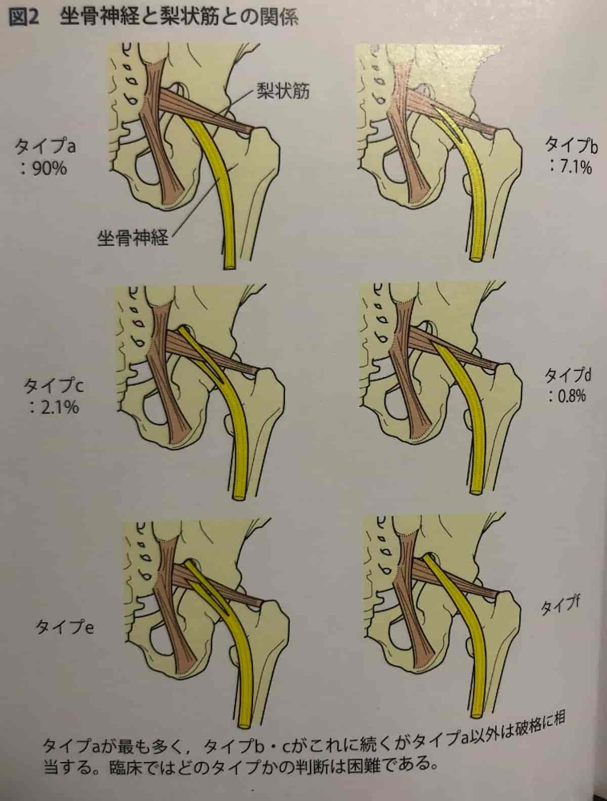坐骨神経と梨状筋の解剖
